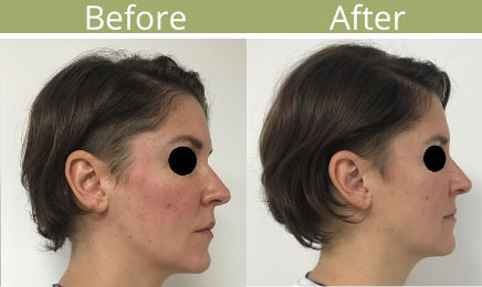 Ellanse collagen stimulatore case-study side view