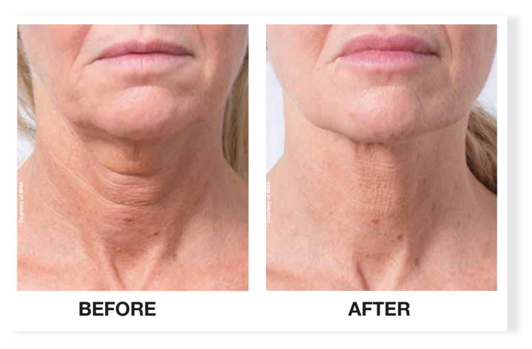 Profhilo neck treatment