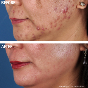 Skincare Before and After